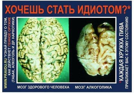 мозг,хочешь стать,идиотом,спирт,алкоголь